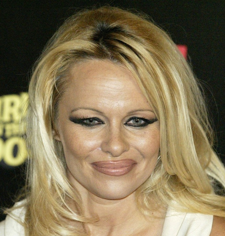 Pamela-Anderson-after-eyelids-and-lips-surgery